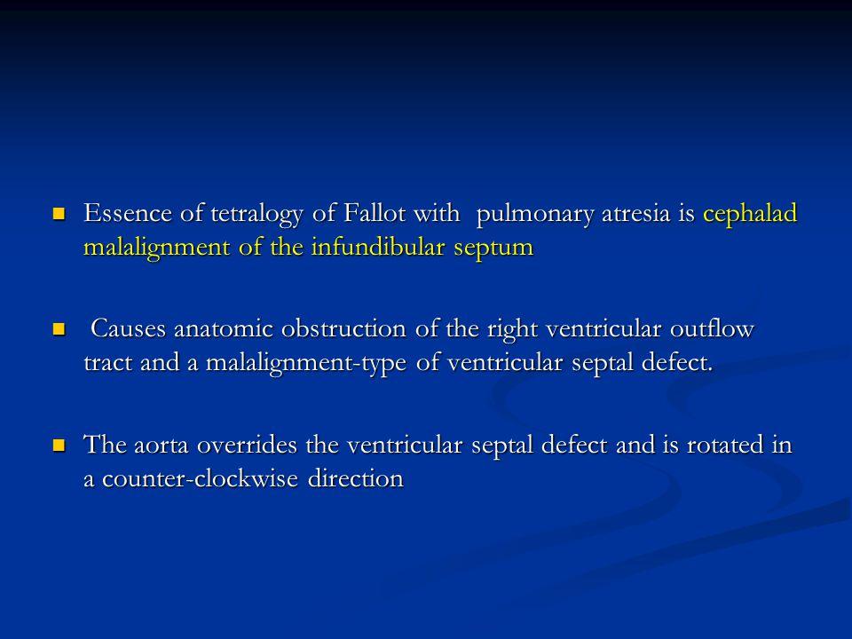Essence of tetralogy of Fallot with pulmonary atresia is cephalad malalignment of the infundibular septum