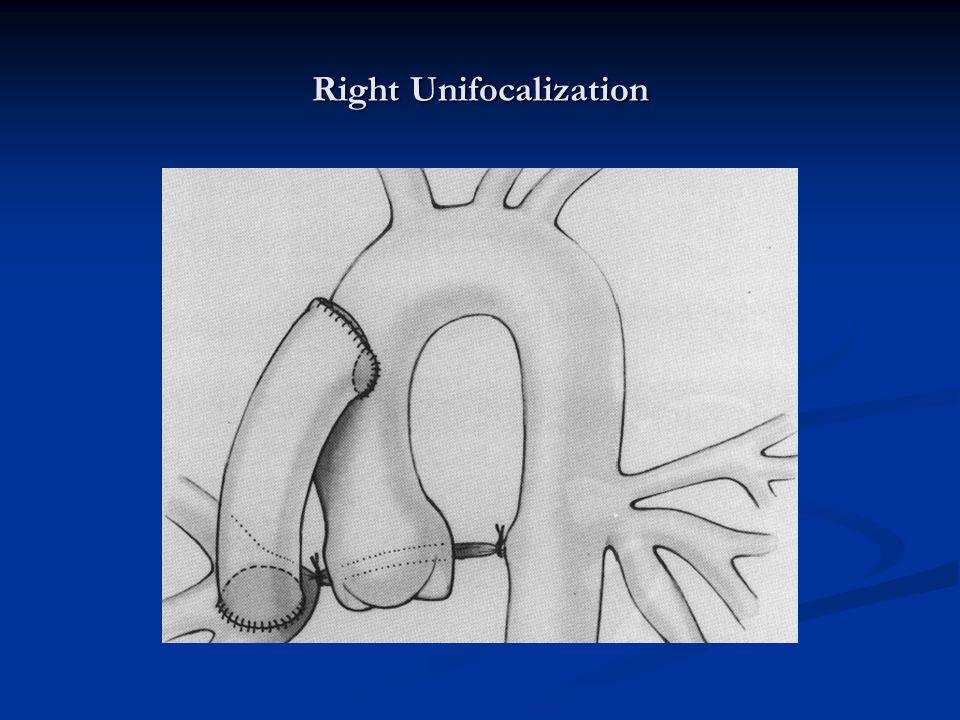 Right Unifocalization