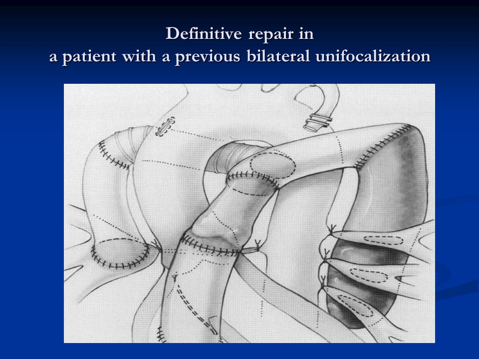 Definitive repair in a patient with a previous bilateral unifocalization
