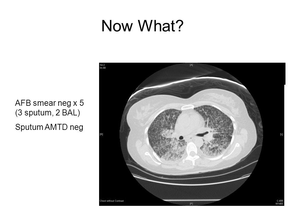 Now What AFB smear neg x 5 (3 sputum, 2 BAL) Sputum AMTD neg