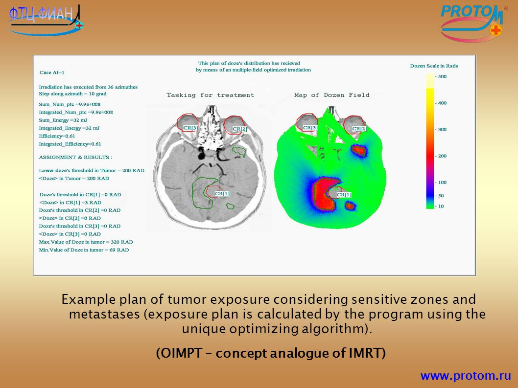 (OIMPT – concept analogue of IMRT)