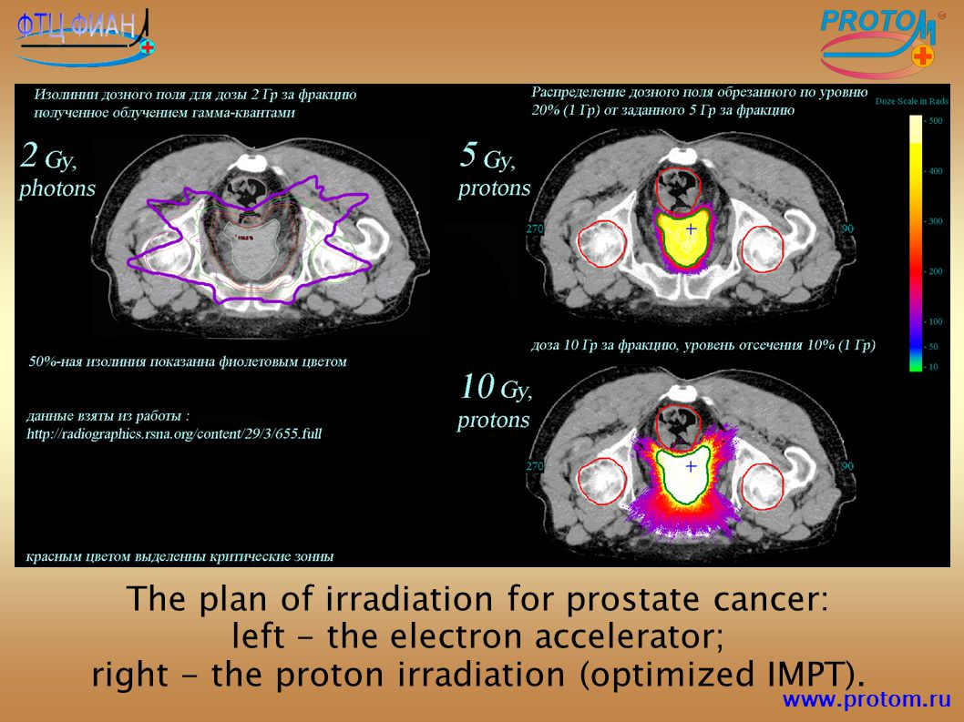 The plan of irradiation for prostate cancer: left - the electron accelerator; right - the proton irradiation (optimized IMPT).