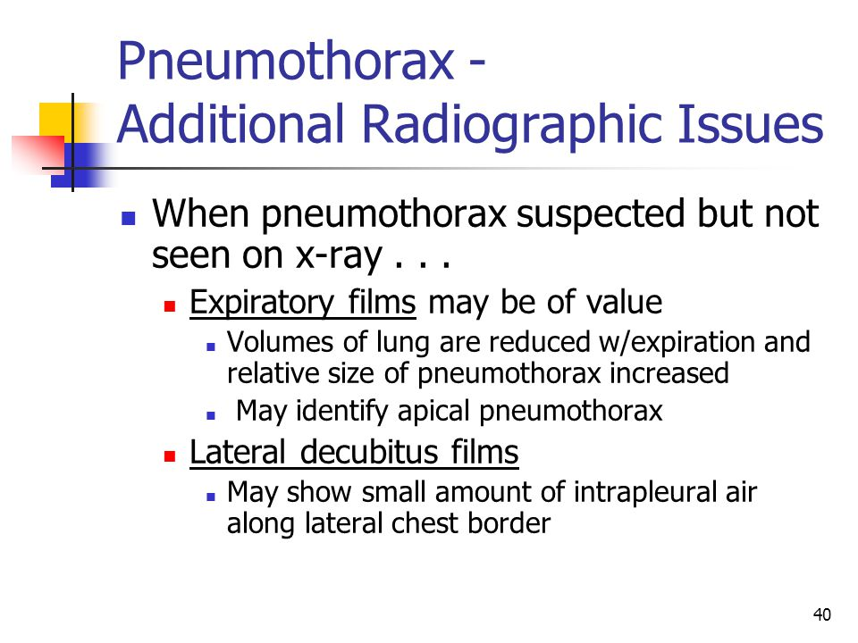 Pneumothorax - Additional Radiographic Issues
