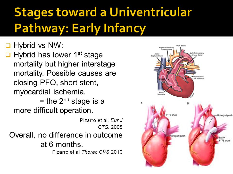 Stages toward a Univentricular Pathway: Early Infancy