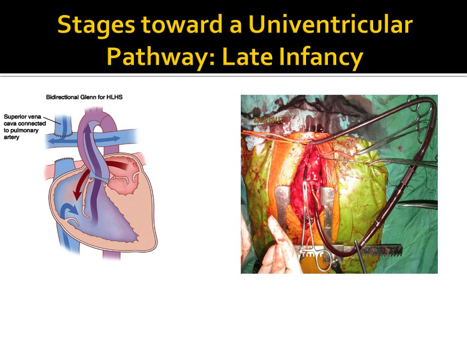 Stages toward a Univentricular Pathway: Late Infancy