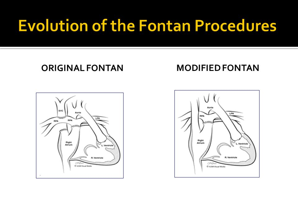Evolution of the Fontan Procedures