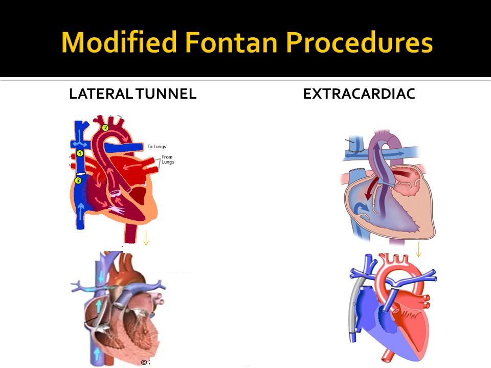 Modified Fontan Procedures