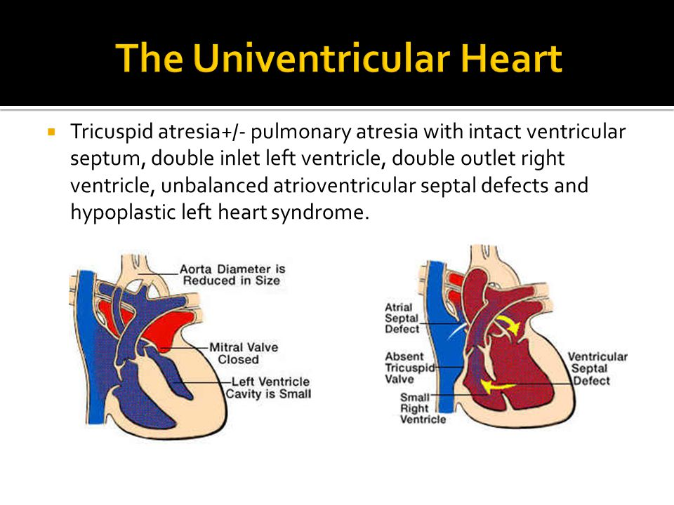 The Univentricular Heart