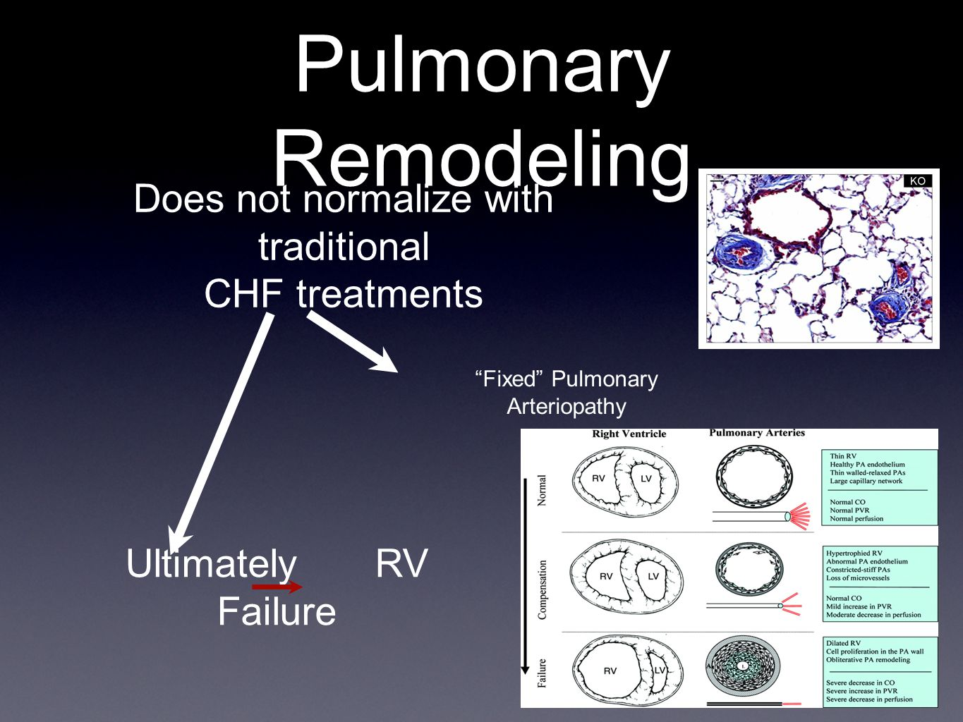 Pulmonary Remodeling Does not normalize with traditional