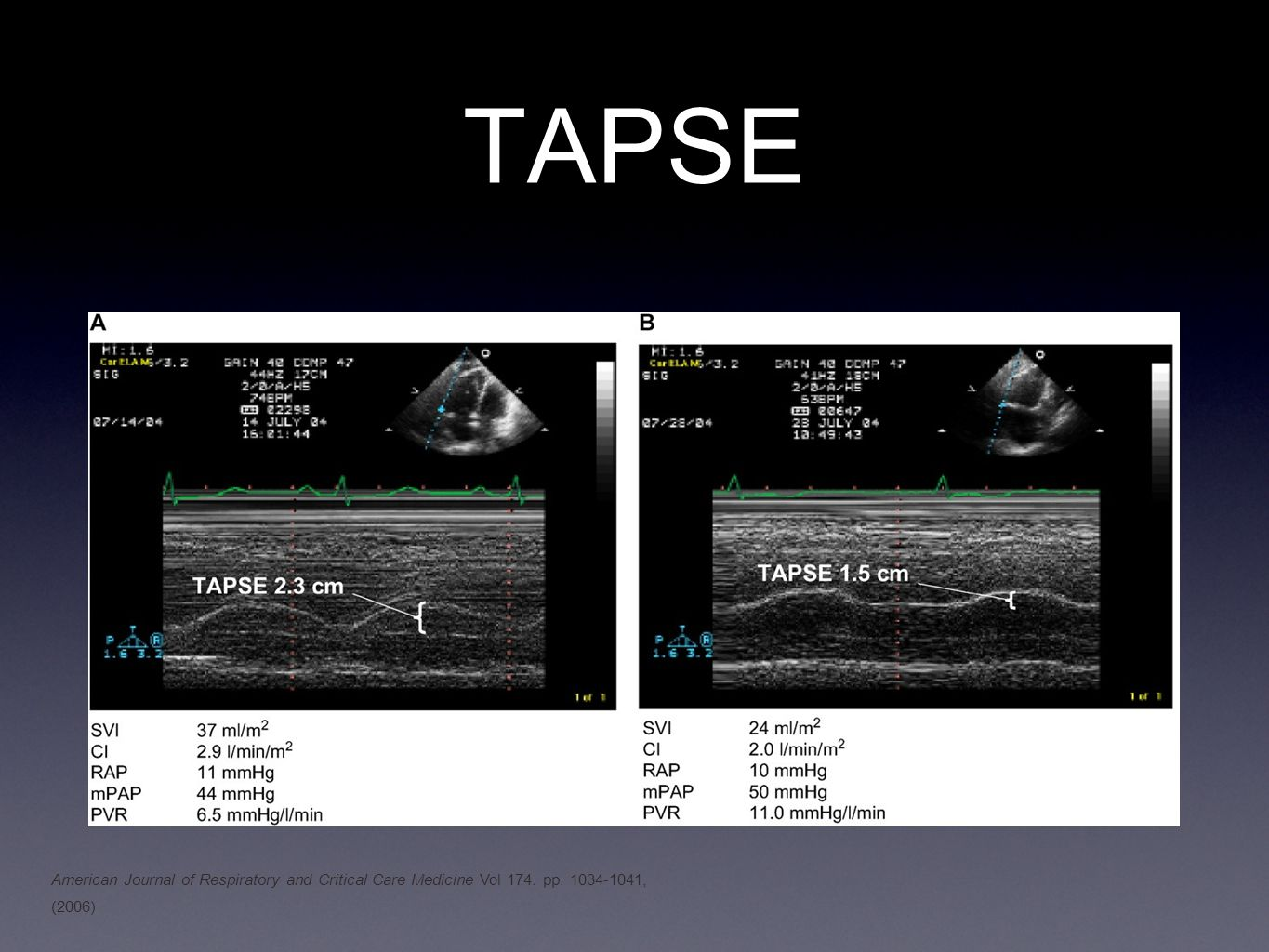 TAPSE American Journal of Respiratory and Critical Care Medicine Vol 174. pp. 1034-1041, (2006)