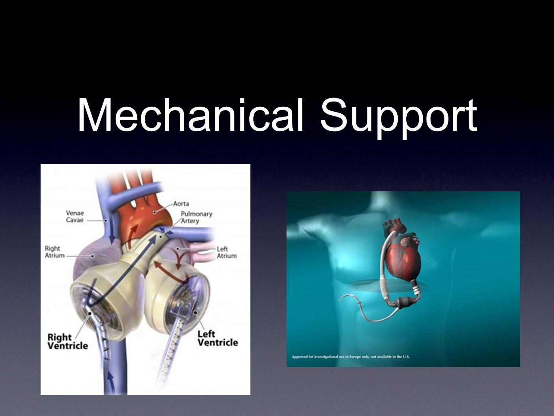 Mechanical Support
