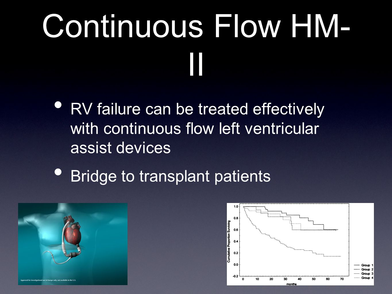 Continuous Flow HM-II RV failure can be treated effectively with continuous flow left ventricular assist devices.