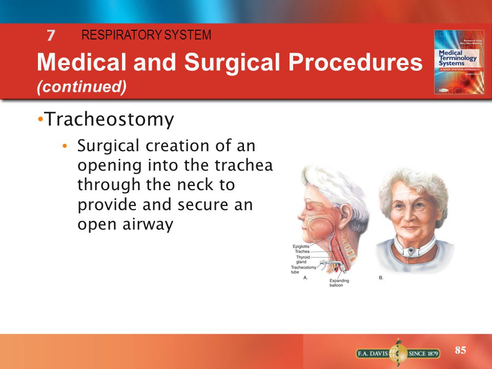 Medical and Surgical Procedures (continued)
