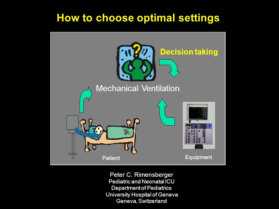 How to choose optimal settings