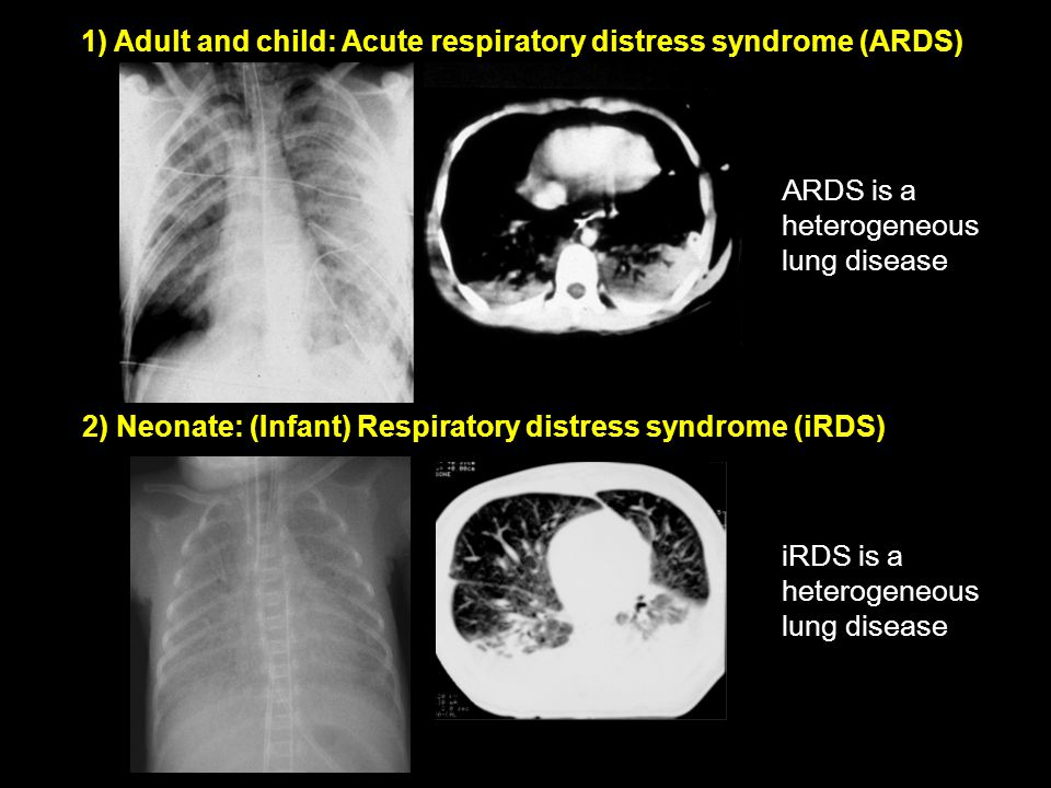 1) Adult and child: Acute respiratory distress syndrome (ARDS)