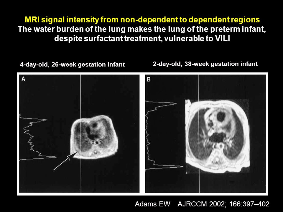 MRI signal intensity from non-dependent to dependent regions