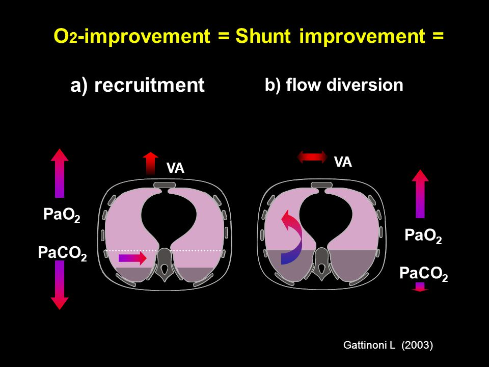 O2-improvement = Shunt improvement =