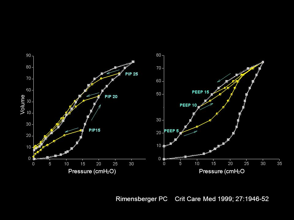 Rimensberger PC Crit Care Med 1999; 27:1946-52