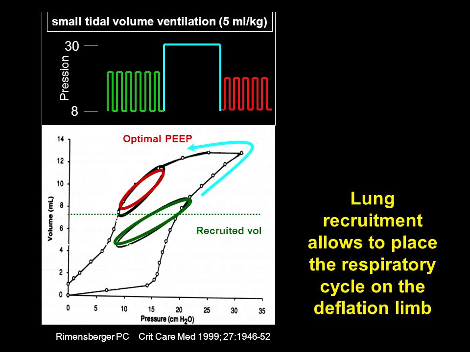 small tidal volume ventilation (5 ml/kg)
