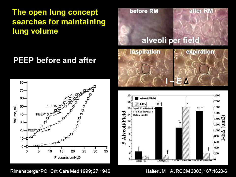 The open lung concept searches for maintaining lung volume