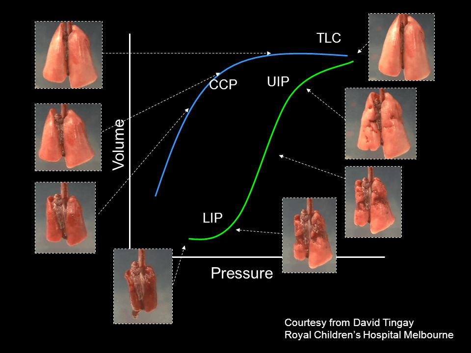 Volume Pressure TLC UIP CCP LIP Courtesy from David Tingay