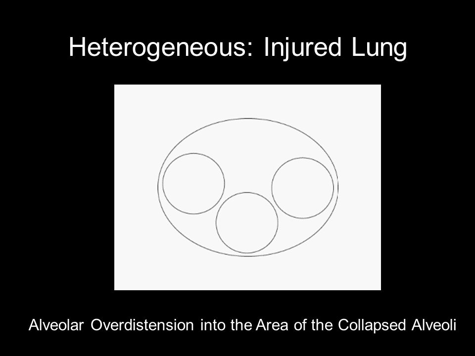 Heterogeneous: Injured Lung