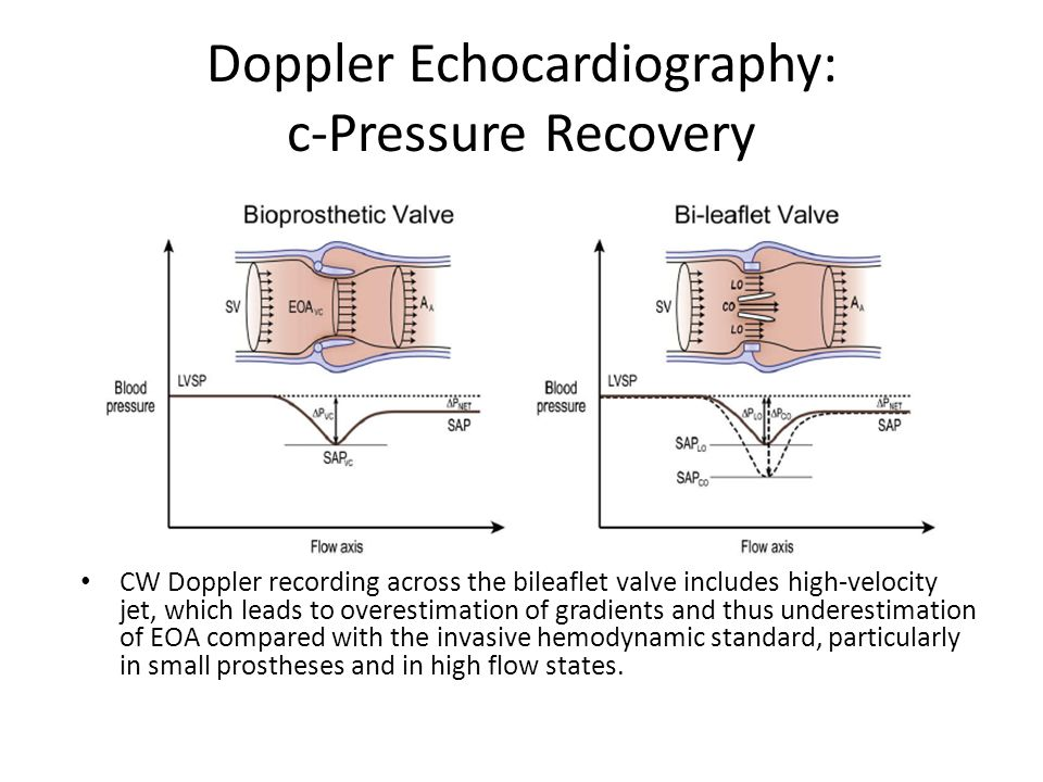 Doppler Echocardiography: c-Pressure Recovery