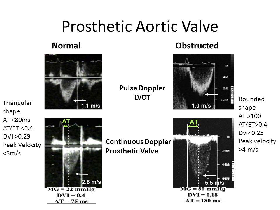 Prosthetic Aortic Valve