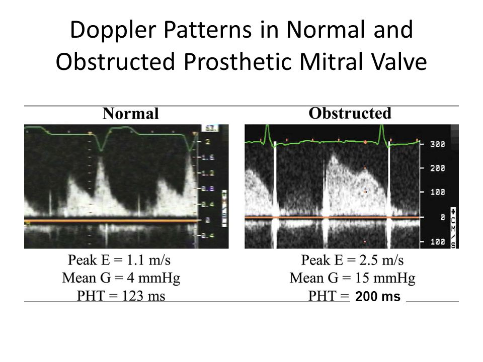 Doppler Patterns in Normal and Obstructed Prosthetic Mitral Valve