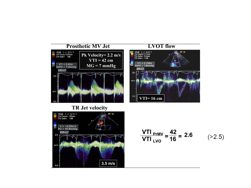 Transthoracic Doppler echocardiographic clues for significant mechanical MR. These recordings are for the same patient