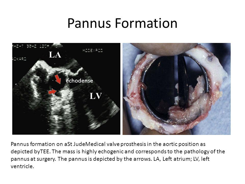 Pannus Formation echodense