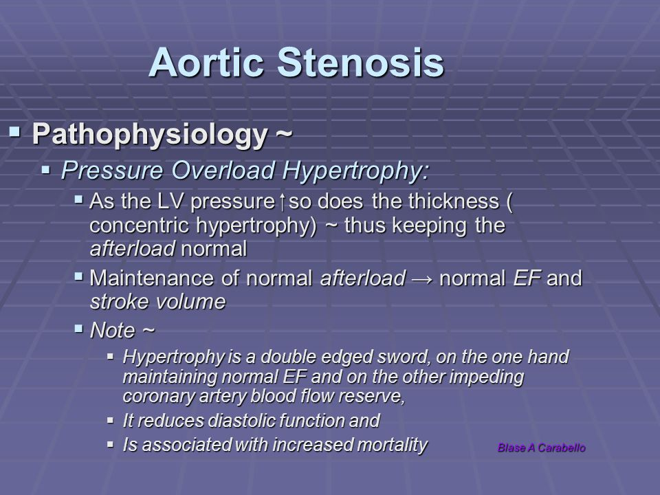 Aortic Stenosis Pathophysiology ~ Pressure Overload Hypertrophy: