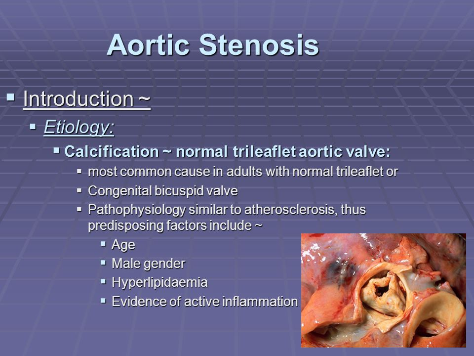Aortic Stenosis Introduction ~ Etiology: