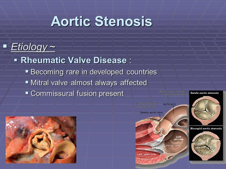 Aortic Stenosis Etiology ~ Rheumatic Valve Disease :