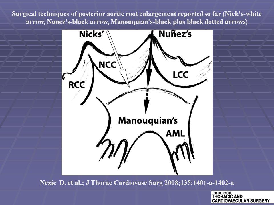 Nezic D. et al.; J Thorac Cardiovasc Surg 2008;135:1401-a-1402-a