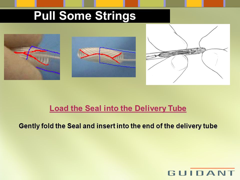 Pull Some Strings Load the Seal into the Delivery Tube