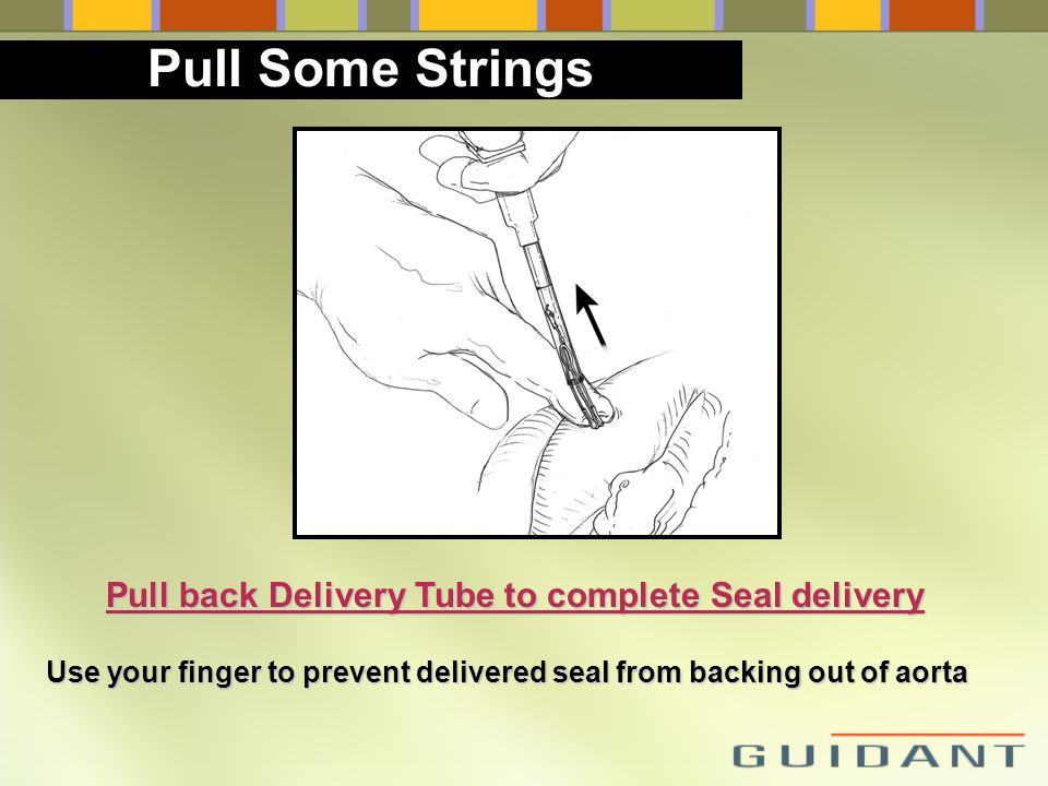 Pull back Delivery Tube to complete Seal delivery