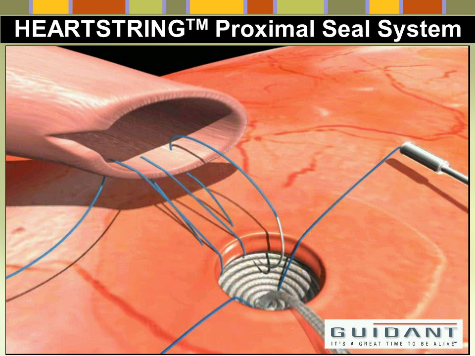 HEARTSTRINGTM Proximal Seal System