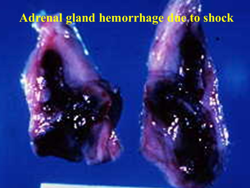 Adrenal gland hemorrhage due to shock