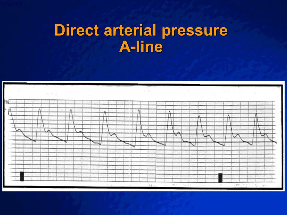 Direct arterial pressure A-line