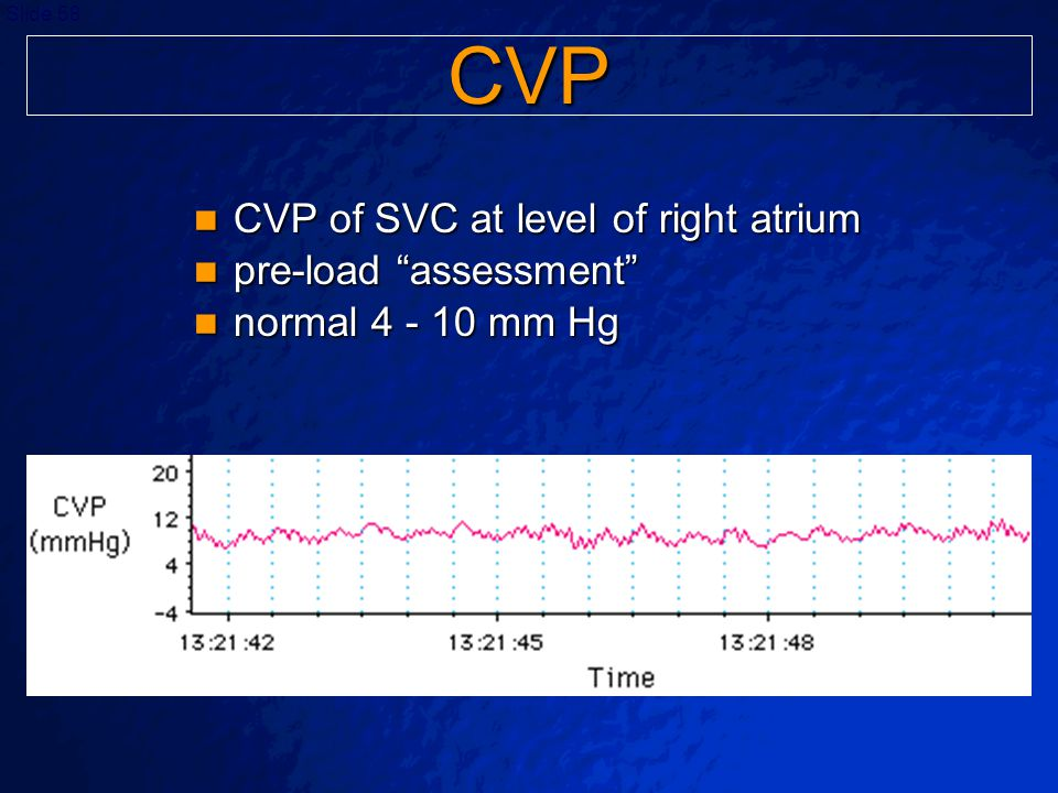 CVP CVP of SVC at level of right atrium pre-load assessment