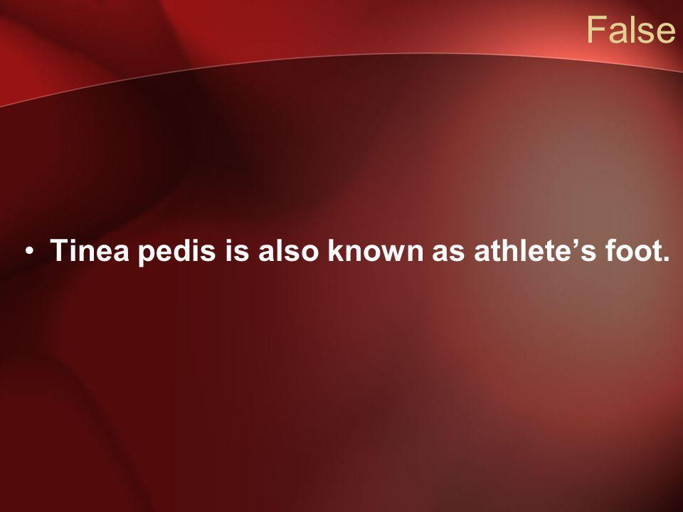 False Tinea pedis is also known as athlete's foot.