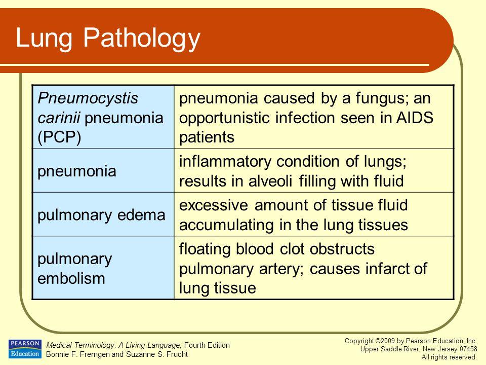 Lung Pathology Pneumocystis carinii pneumonia (PCP)