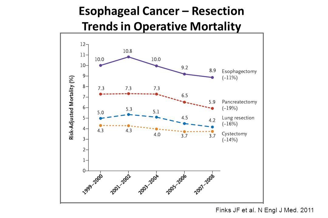 Esophageal Cancer – Resection Trends in Operative Mortality
