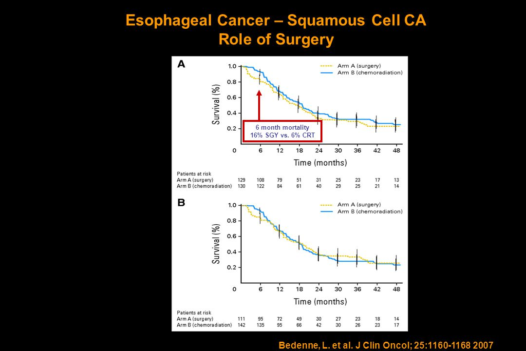 Esophageal Cancer – Squamous Cell CA