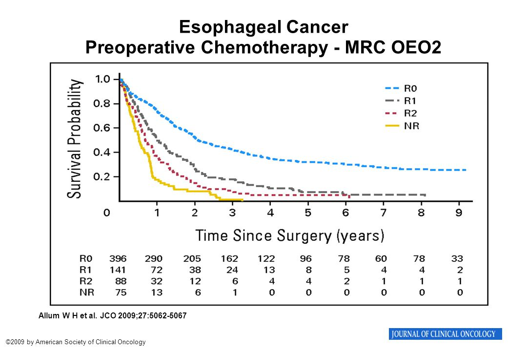 Esophageal Cancer Preoperative Chemotherapy - MRC OEO2