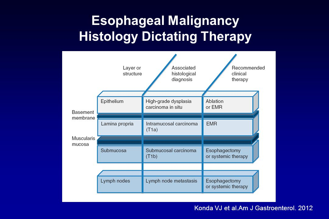 Esophageal Malignancy Histology Dictating Therapy