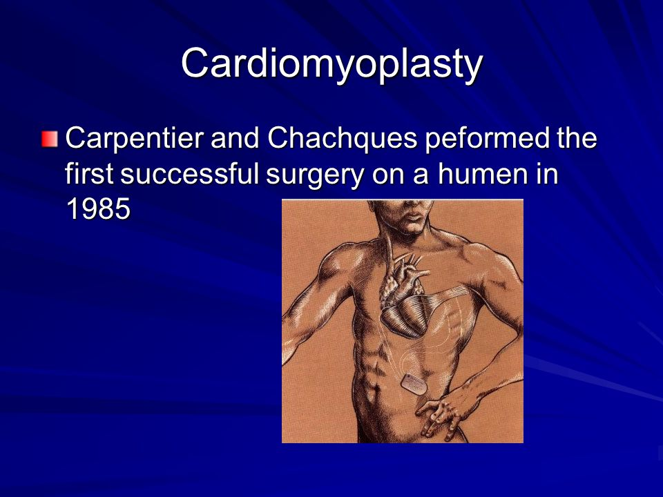 Cardiomyoplasty Carpentier and Chachques peformed the first successful surgery on a humen in 1985