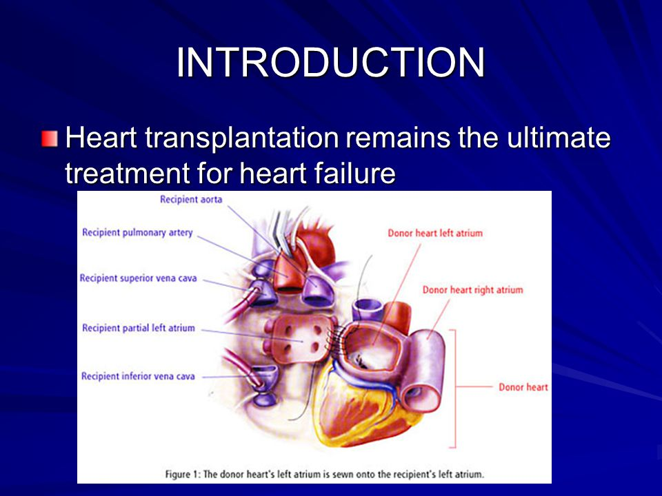 INTRODUCTION Heart transplantation remains the ultimate treatment for heart failure