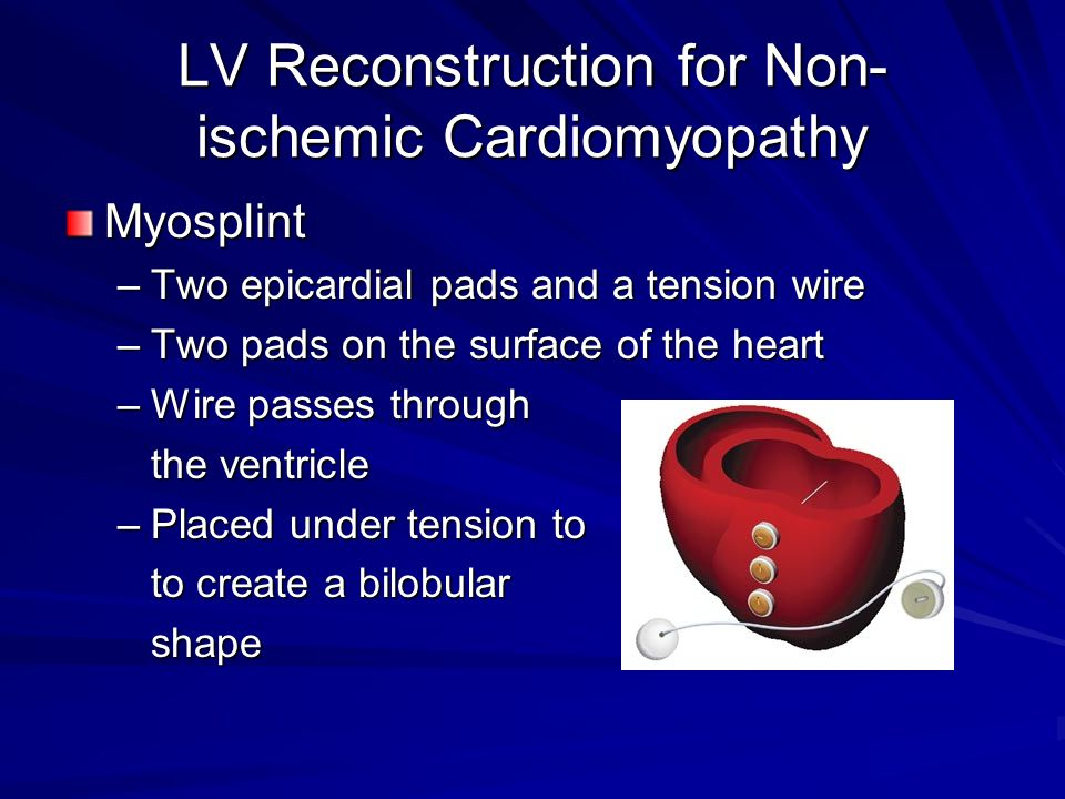LV Reconstruction for Non-ischemic Cardiomyopathy